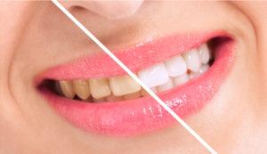 Cosmetic dentist in Huber Heights covers flaws with porcelain veneers