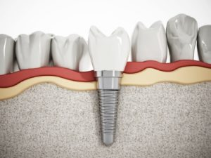 Your dentist in Huber Heights offers dental implants to treat tooth loss.