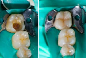picture of tooth colored filling